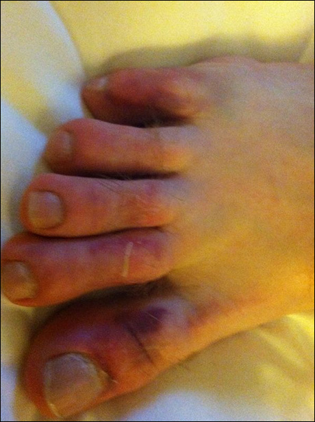 This one time, we had some automation difficulties.  And cast mate Sean Jenness got his foot run over by a very large tower.  Three broken toes.